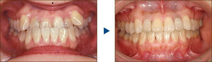 矯正歯科二期治療の様子